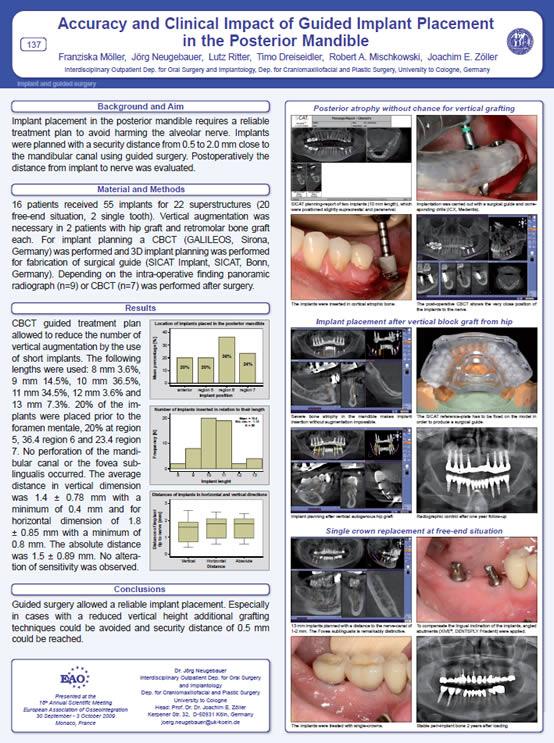 Implantati clanak klinika ICX implant Nemacka